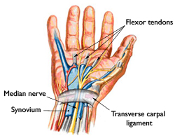 Hand illustrating issues with CTS